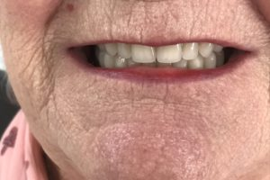 Photo Of A Lady's Mouth After Denture Work At Denture Clinic In Liverpool