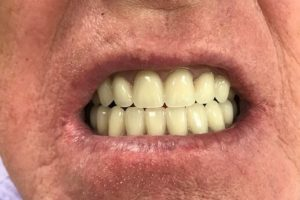 Photo Of A Mans Mouth Before Denture Work At Denture Clinic In Liverpool