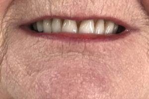 Photo Of A Lady's Mouth Before Denture Work At Denture Clinic In Liverpool