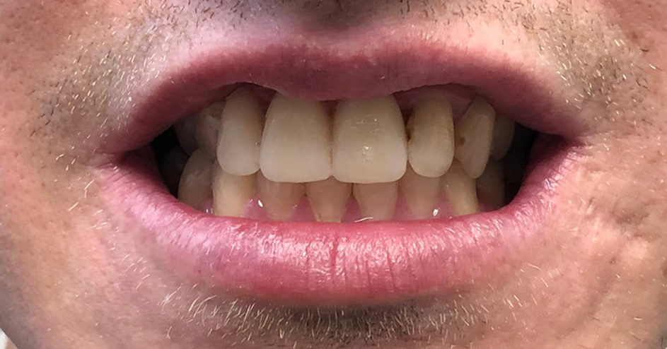 Sports injury made right with new partial denture