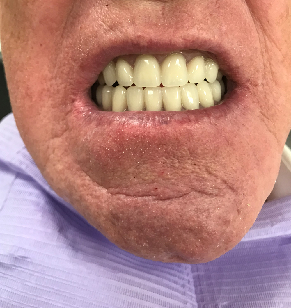 Gentleman trying a set of false teeth part of the denture process