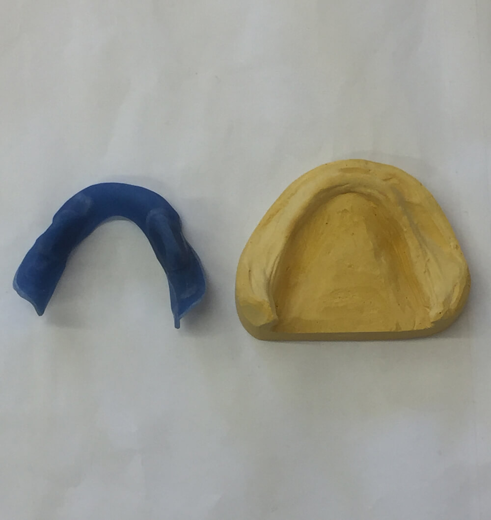 plaster mould of lower mouth to make denture part of the denture process
