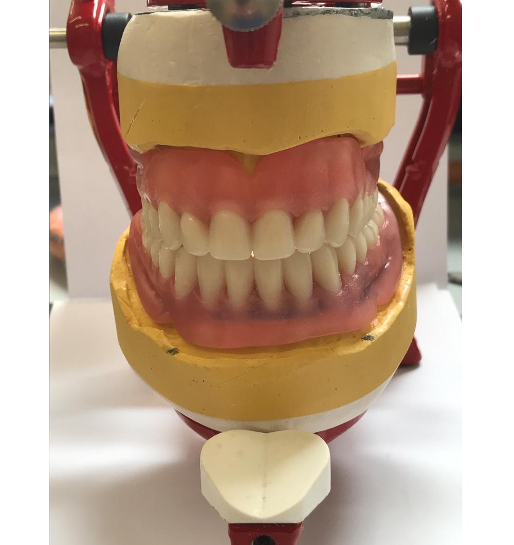 false teeth in an articulator part of the denture process