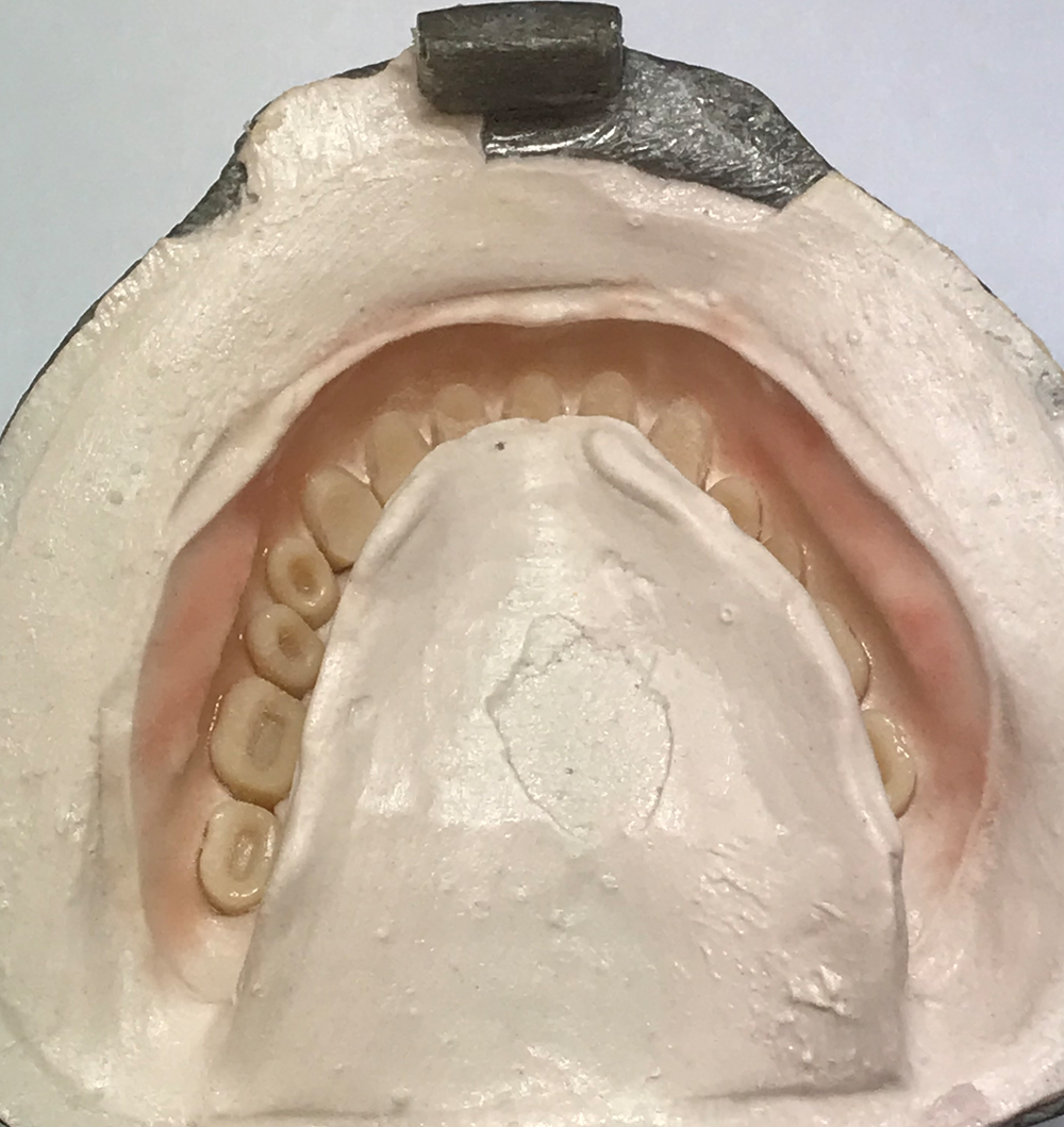 part of the denture process